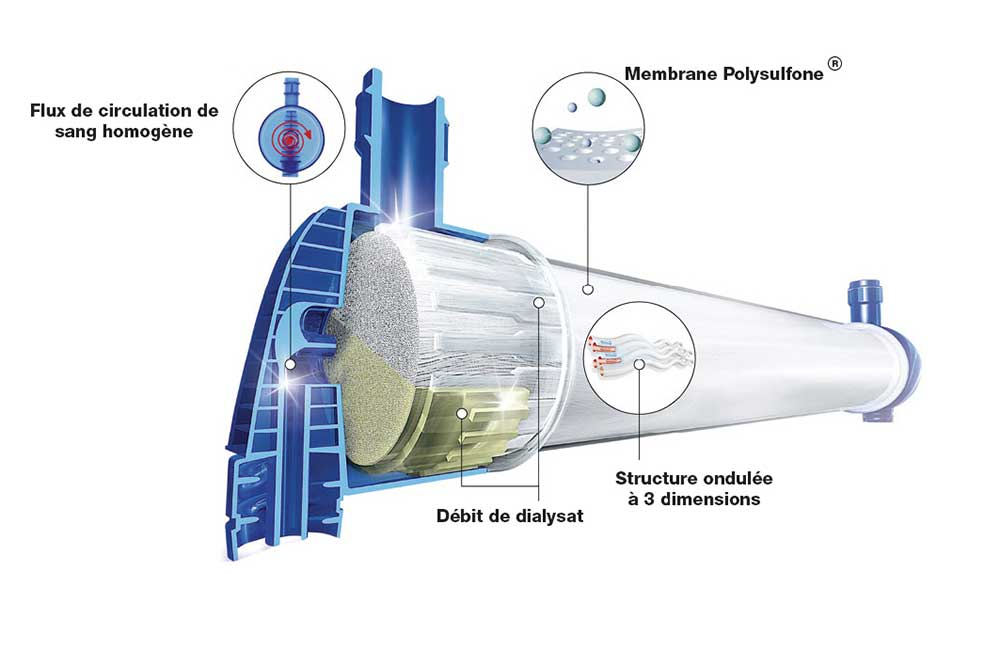 dialyseur-fx-smad